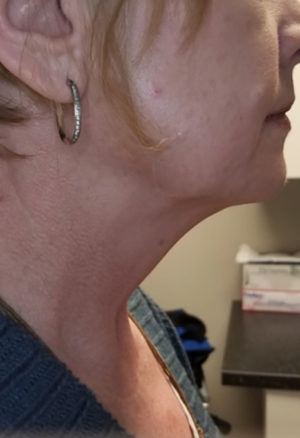 Kybella Before and After Results