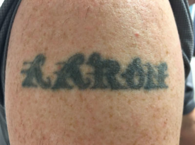 PicoSure Tattoo Removal